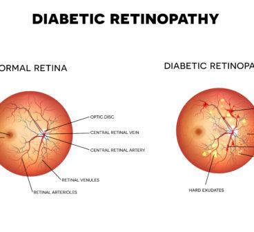 597e5590ec8 Diabetic Retinopathy